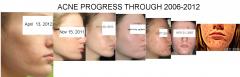 Updated acne progress photos