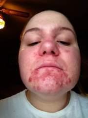 I hate my skin