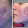 Before and After The Regimen