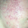 RED MARKS ACCUTANE WEEK3