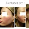 Dermapen treatment day 1